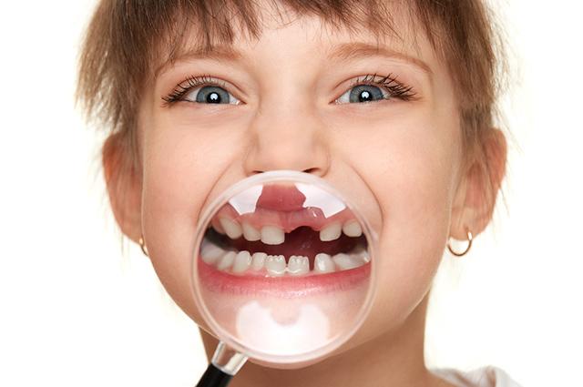 Menina sem dente de leite
